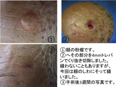 粉瘤(アテローム、表皮嚢腫)くりぬき法